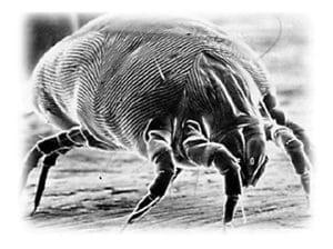 Matratzenreinigung Hausstaubmilbe Milbenalarm